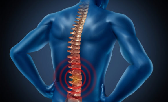 MELT Low Back Pain Study